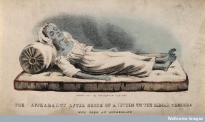 A dead victim of cholera at Sunderland in 1832. Coloured lit